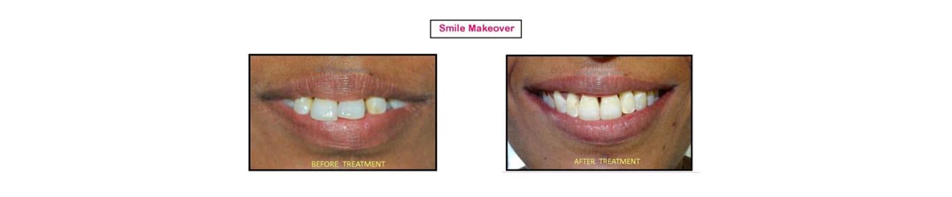 Dr. Sumit Jain (Smile N Braces Superspeciality Dental Clinic) - Dentist and Dental Clinic in Jabalpur City, Jabalpur